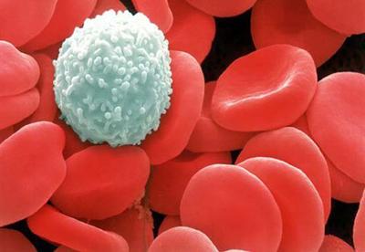 Tổng quan về ung thư tế bào máu