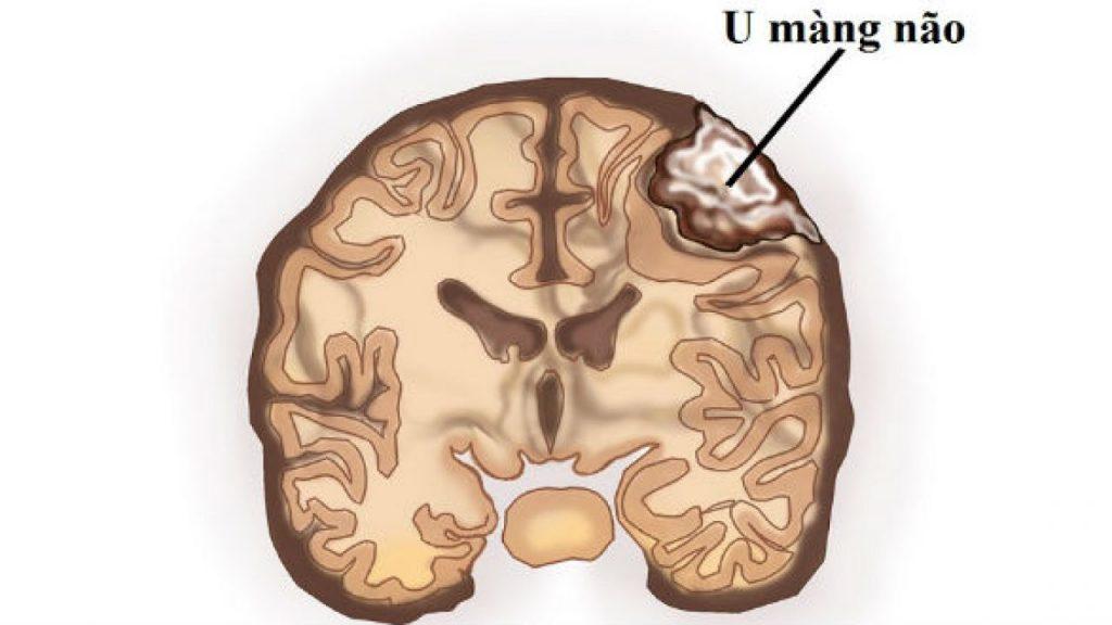 Các loại khối u não