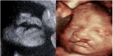 ung thư vú khi mang thai