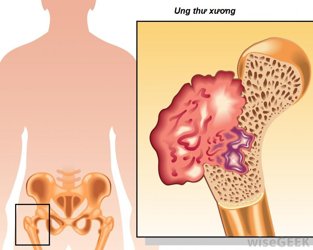 phòng ngừa ung thư xương